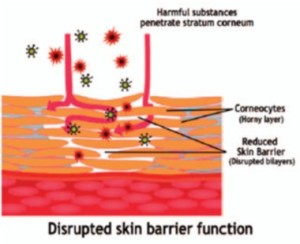 Disrupted skin barrier. Very reactive. Very sore.